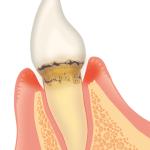 歯周病危険度2