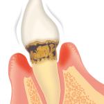 歯周病危険度3