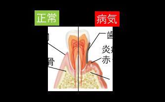 正常の歯と虫歯の歯