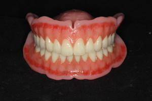 完成入れ歯