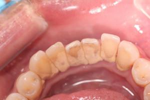 歯石がある状態
