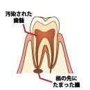 歯髄炎を起こしている