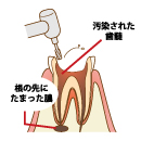 歯髄箇所まで削る