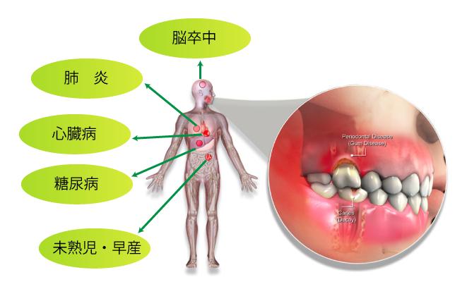 歯周病は全身に影響を及ぼします