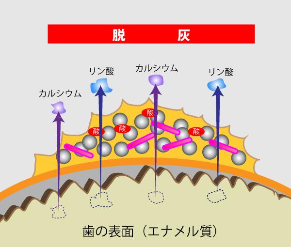 歯の表面(エナメル質)を溶解